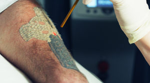 laser tattoo removal northeast houston